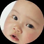赤ちゃんの眉間