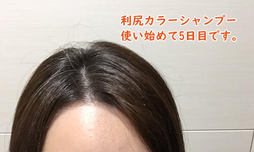 利尻カラーシャンプー5日目