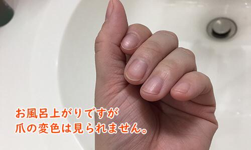 爪は変色しませんでした